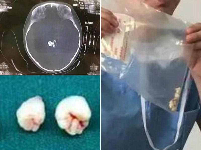 cancer cerebral cirurgia