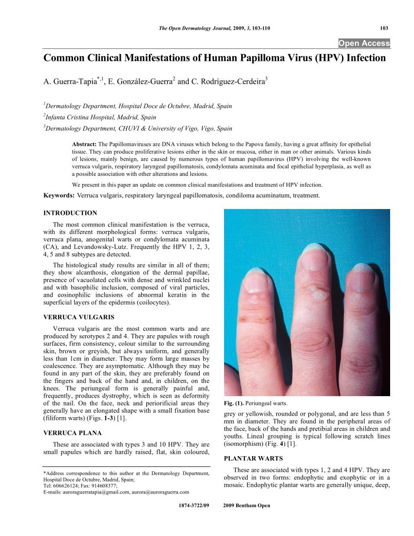 Venereal Wart (Condyloma acuminata)