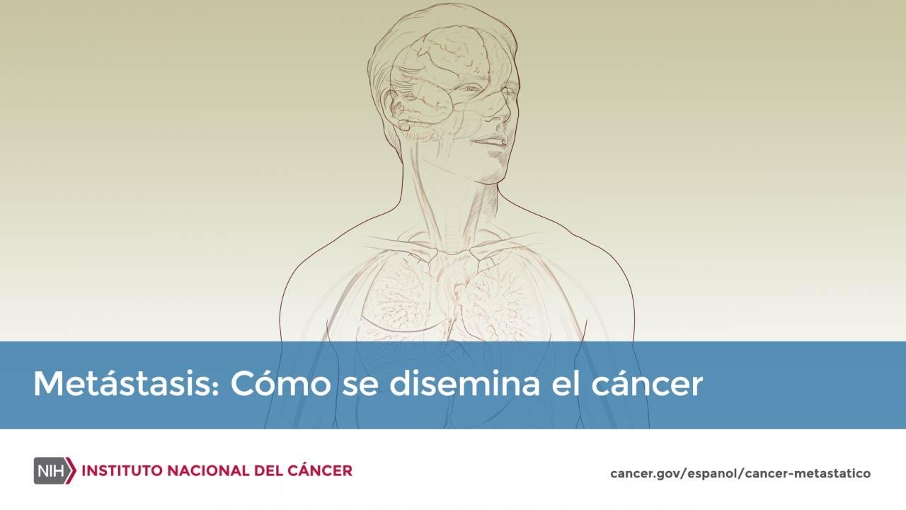 cancer de tip masculin