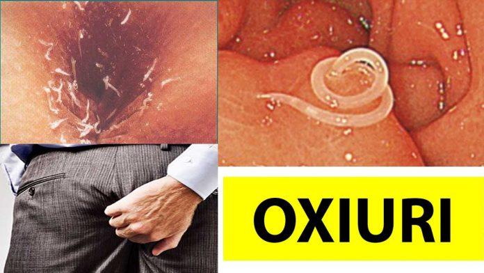 Remedii care vă scapă de paraziţii intestinali