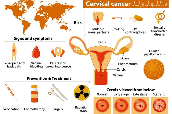cervical cancer and back pain