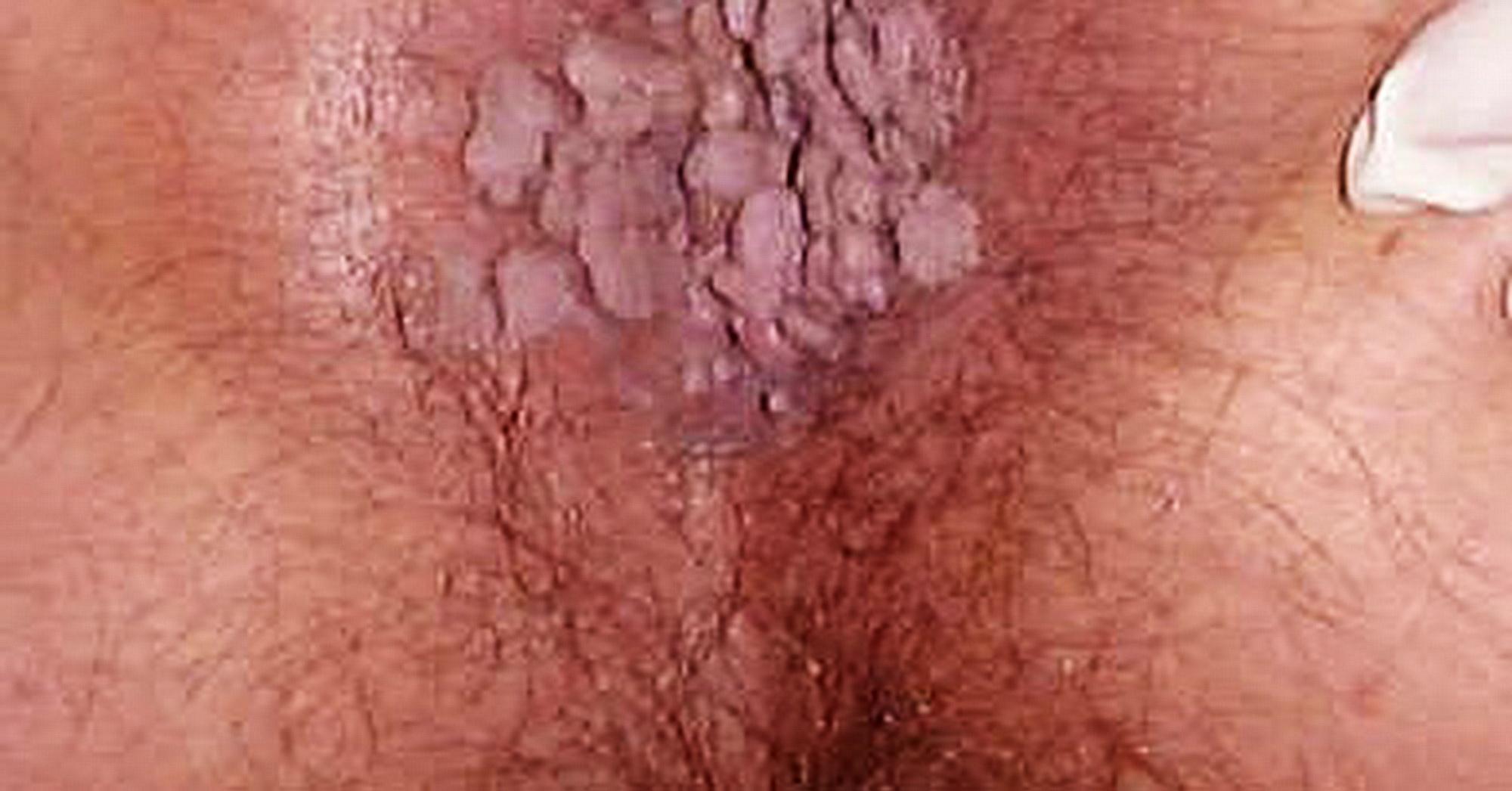 papilloma virus genitali sintomi)