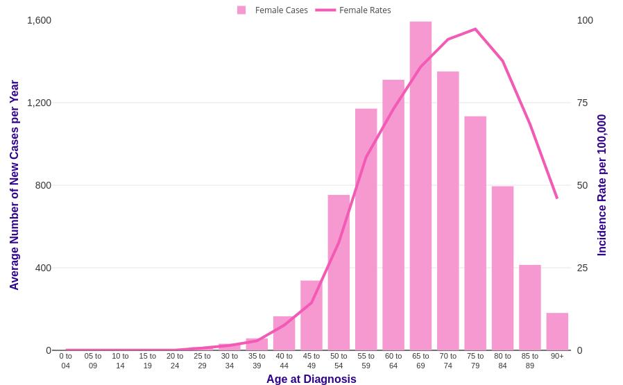 endometrial cancer prevalence)