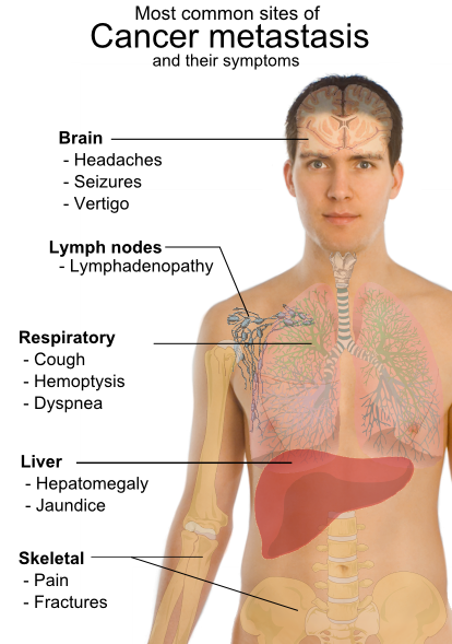 simptome cancer pulmonar ultima faza