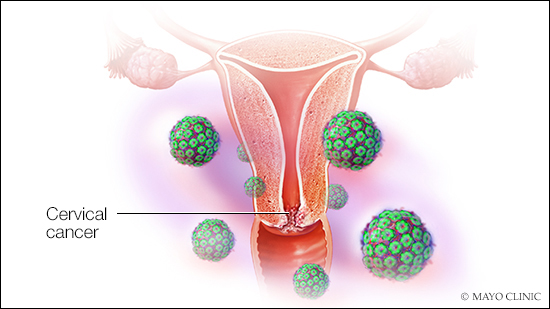 how does human papillomavirus cause cervical cancer)