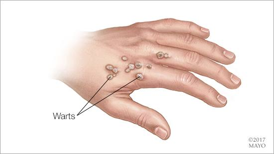 warts on hands multiplying