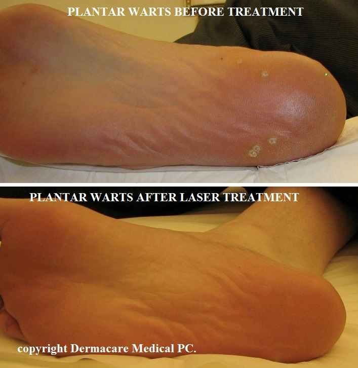 hpv warts surgical removal