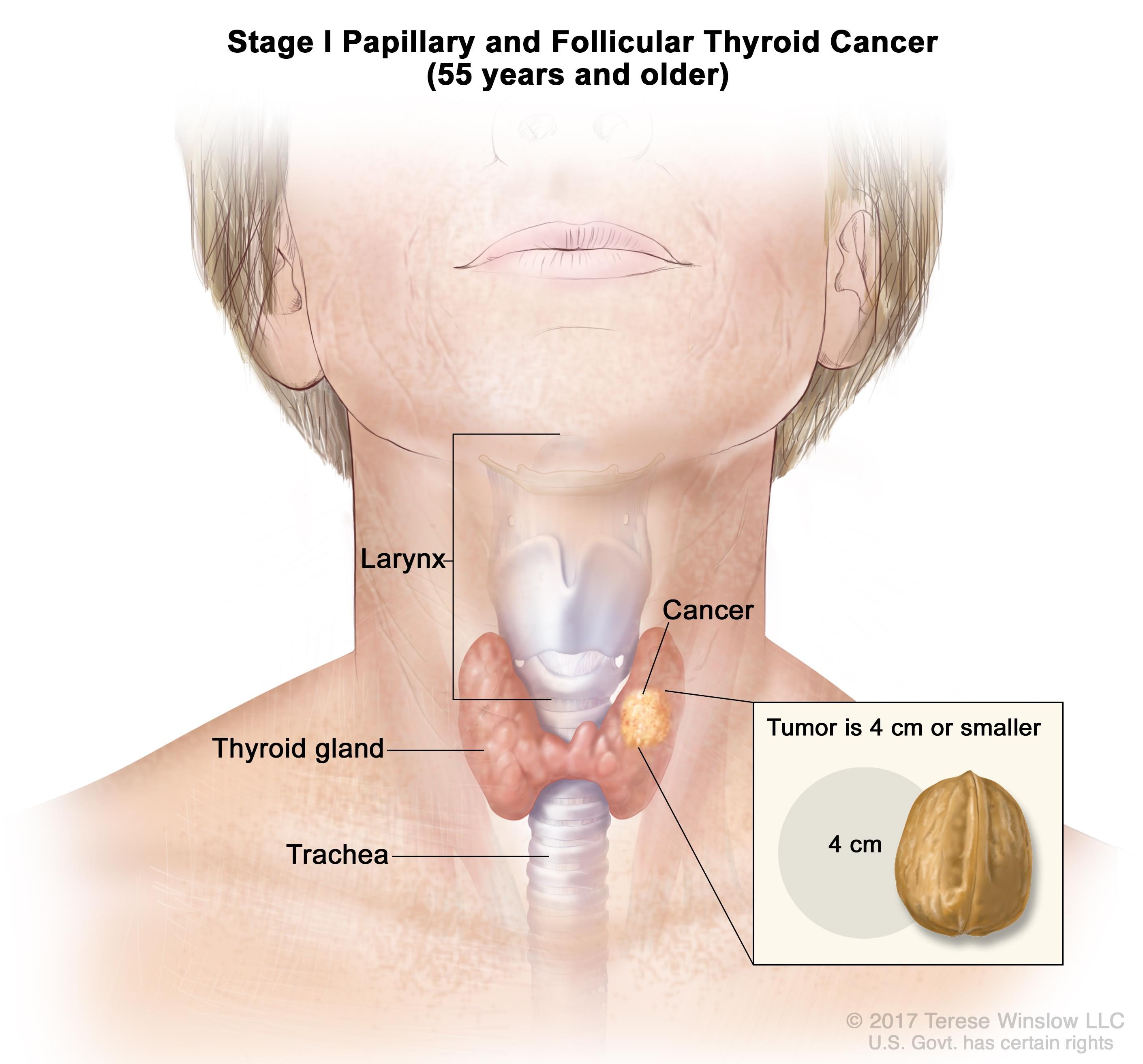 papillary thyroid cancer treatment without surgery)