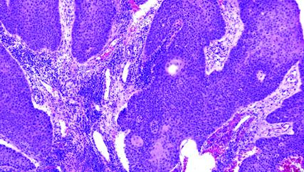 recurrent respiratory papillomatosis pathology)