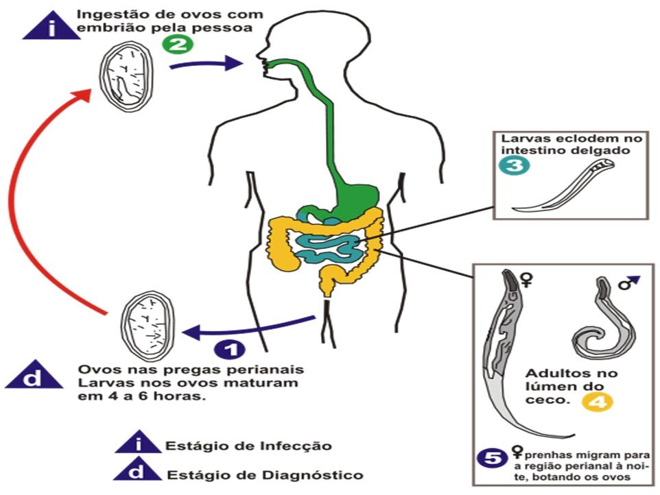 oxyuris vermicularis menyebabkan penyakit