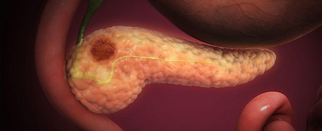 Cancerul pancreatic. Tot ce trebuie să știi - cauze, simptome, tratament