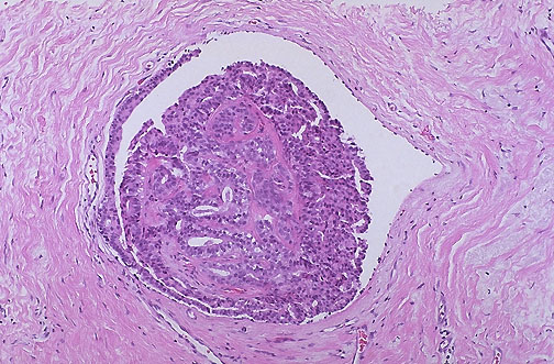 ductal papilloma of breast examination)