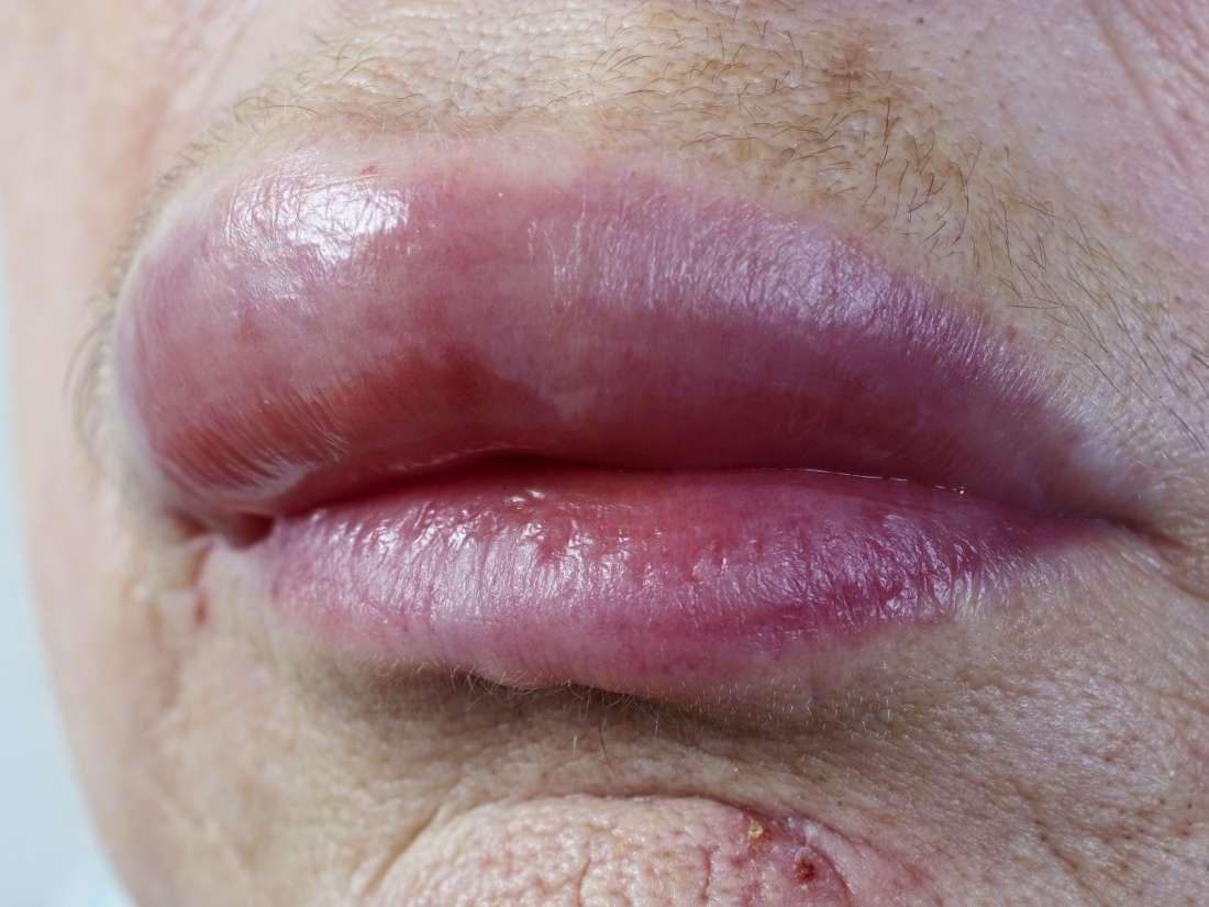 hpv lip swelling)