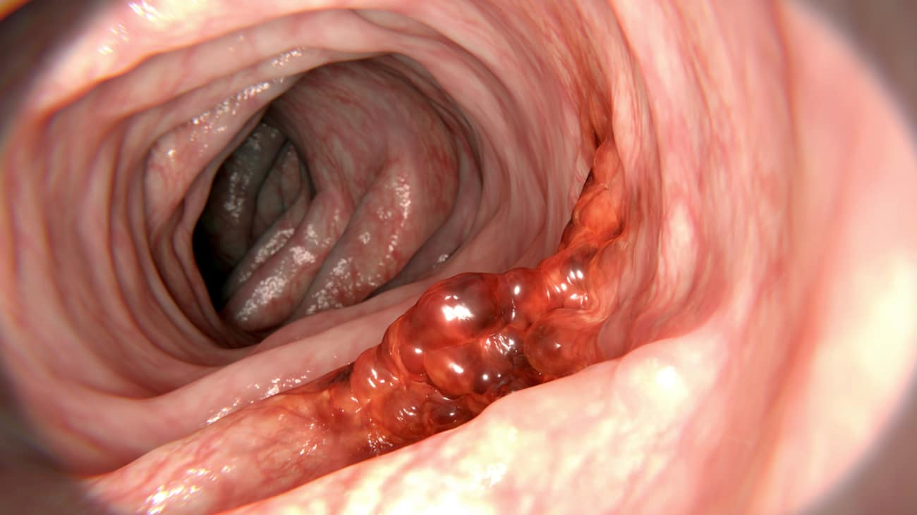 colon cancer from hpv)