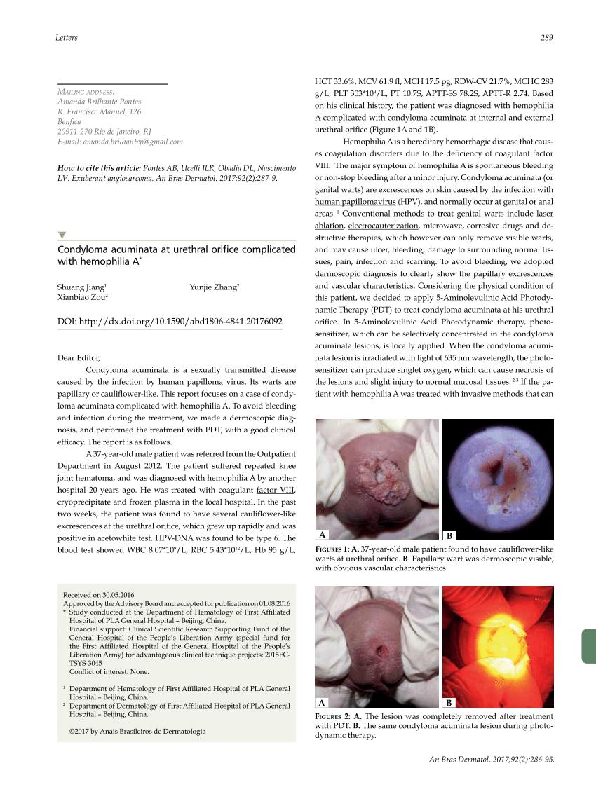 papilloma tumor breast papilloma fossa nasale