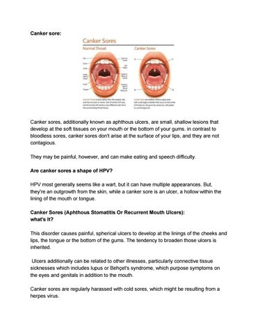 hpv in mouth vs canker sore