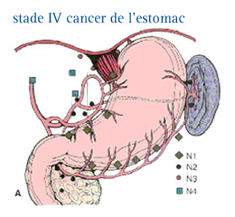 cancer fundus gastric cancer de piele vindecare