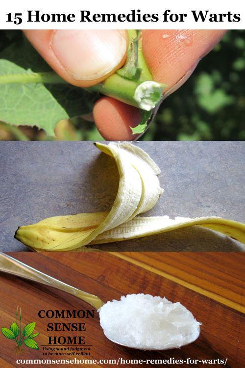 papilloma home remedy