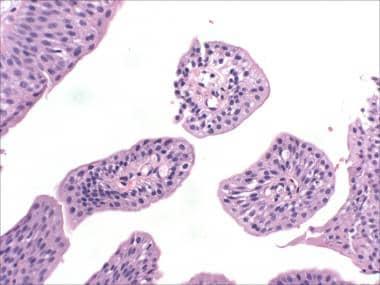 urothelial papilloma histopathology)
