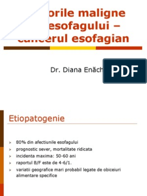 Cât este de periculos cancerul esofagian?