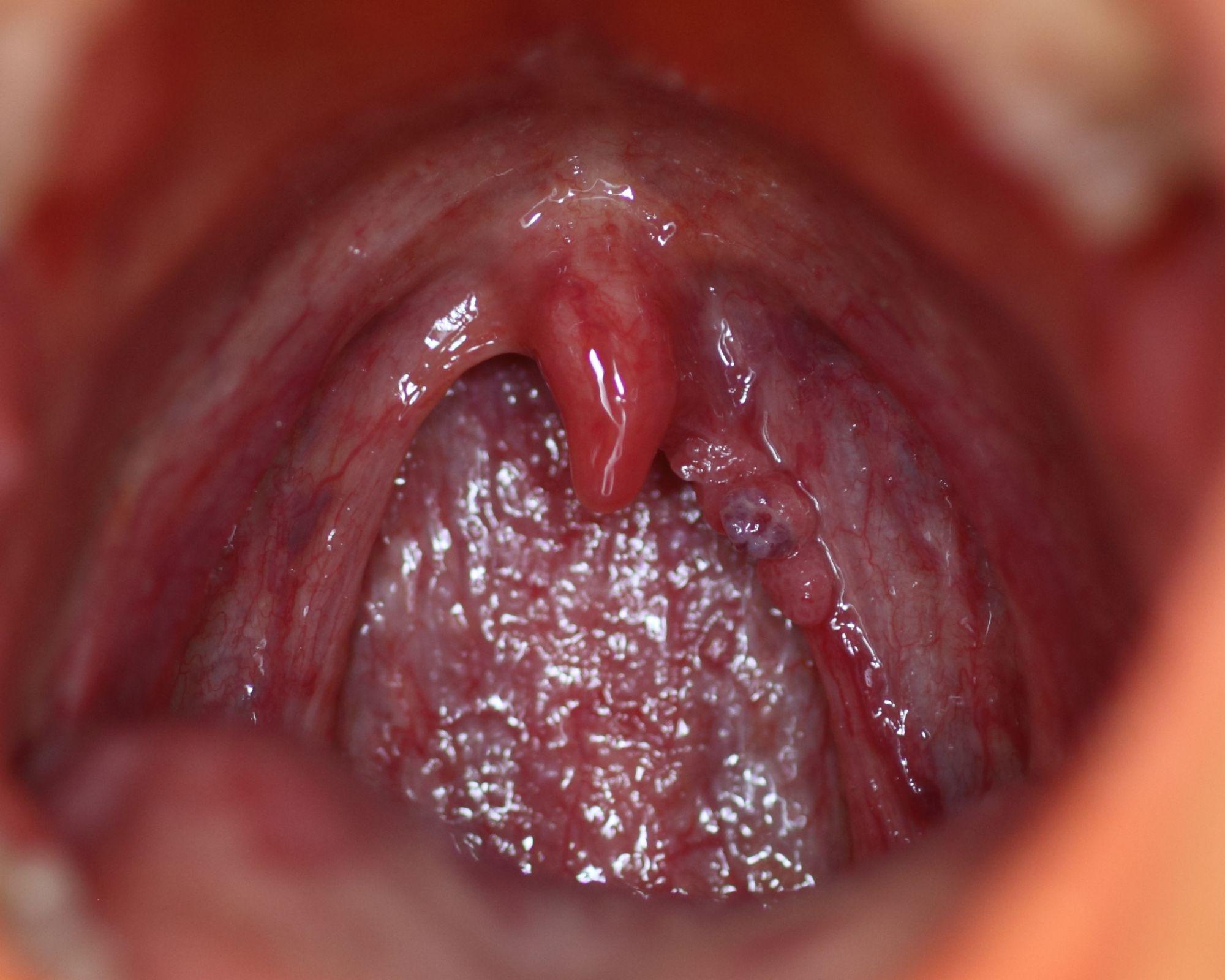 deceler papillomavirus chez lhomme detoxifiere 30 de zile