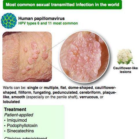 le papillomavirus hpv)