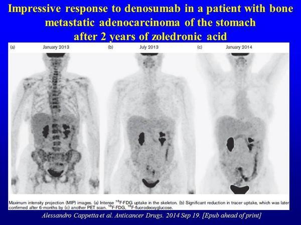 gastric cancer metastasis to bone)