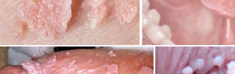 virus papiloma humano condilomas