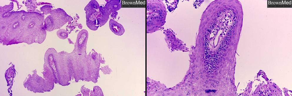 benign neoplasm larynx papillomatosis
