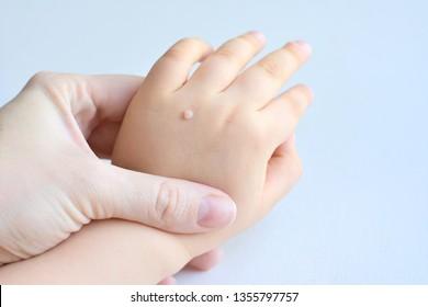 hpv warzen hand)