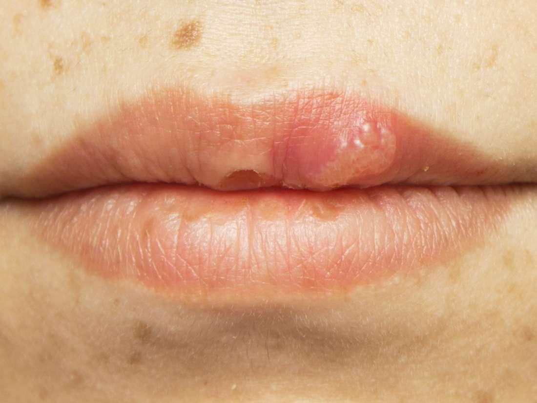papilloma mouth sore