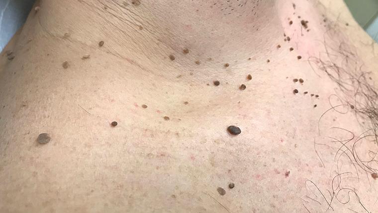 papillomas removal