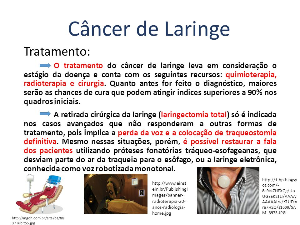 cancer laringe tratamento)