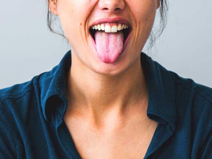 warts on tongue nhs