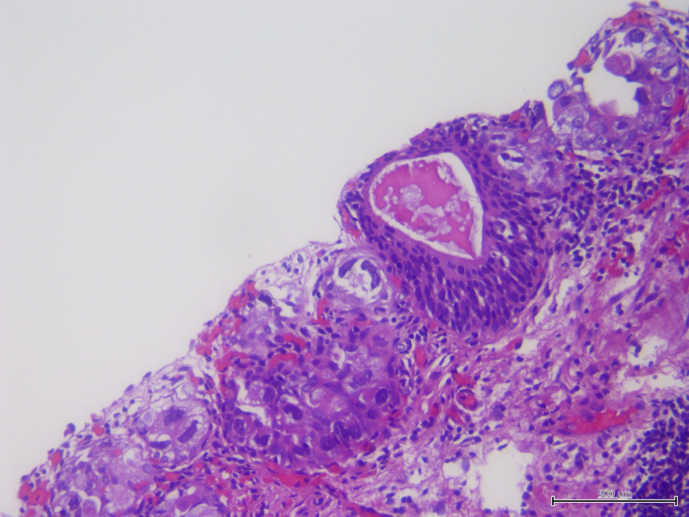 papillary urothelial carcinoma patho outline)
