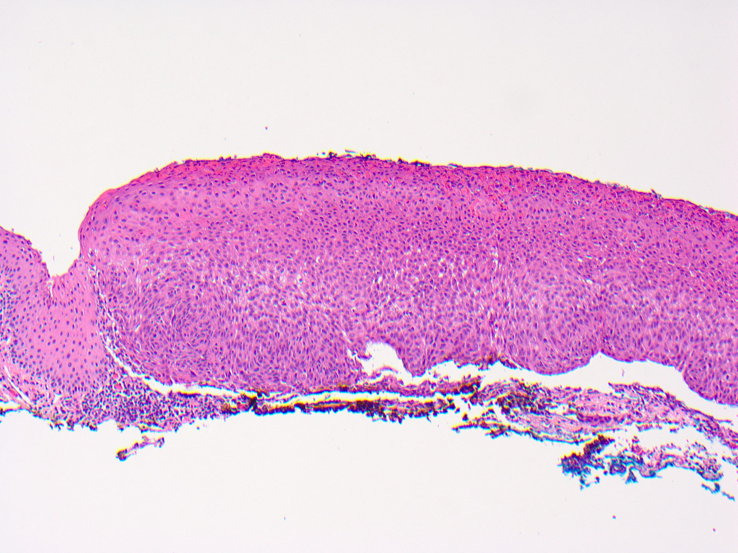 conjunctival squamous papilloma histology)