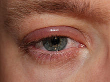 papilloma right lower eyelid icd 10)