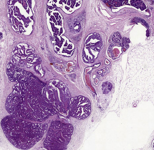 intraductal papilloma of breast pathology outlines)