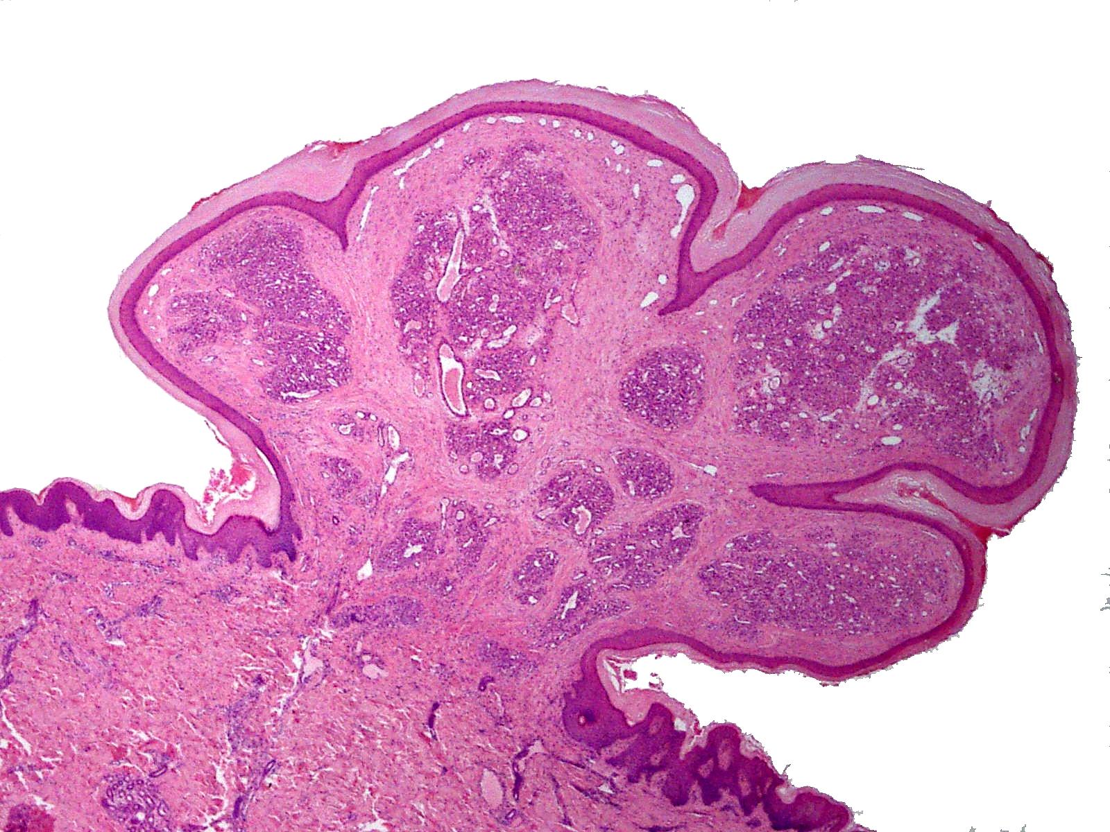 granulomatous papilloma cancer col uterin recidiva