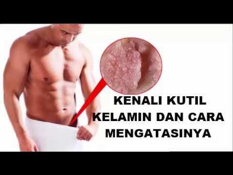 cara menghilangkan penyakit hpv)