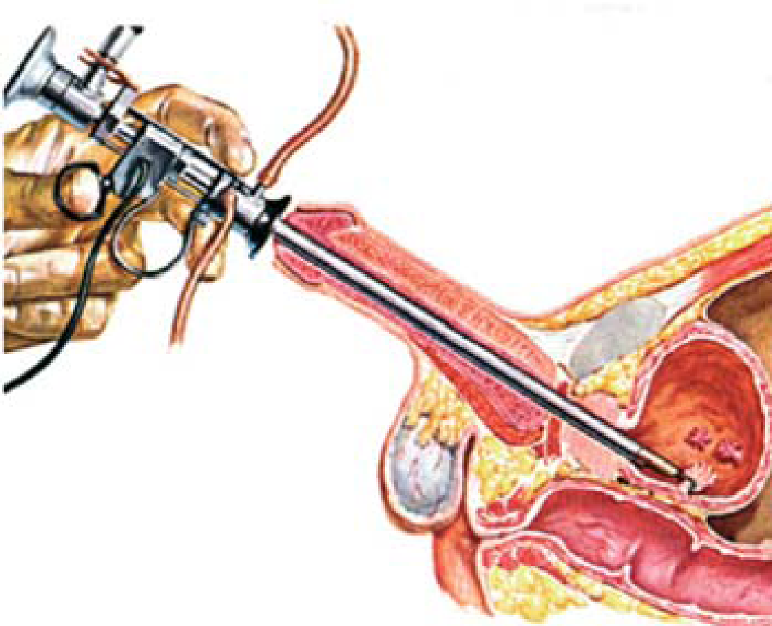 Endoproteze articulațiilor mari la pacienții cu vene varicoase