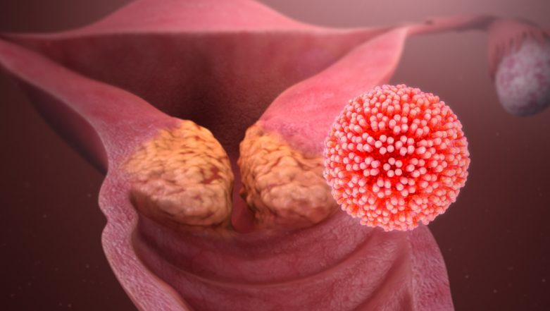 cervical cancer from hpv symptoms