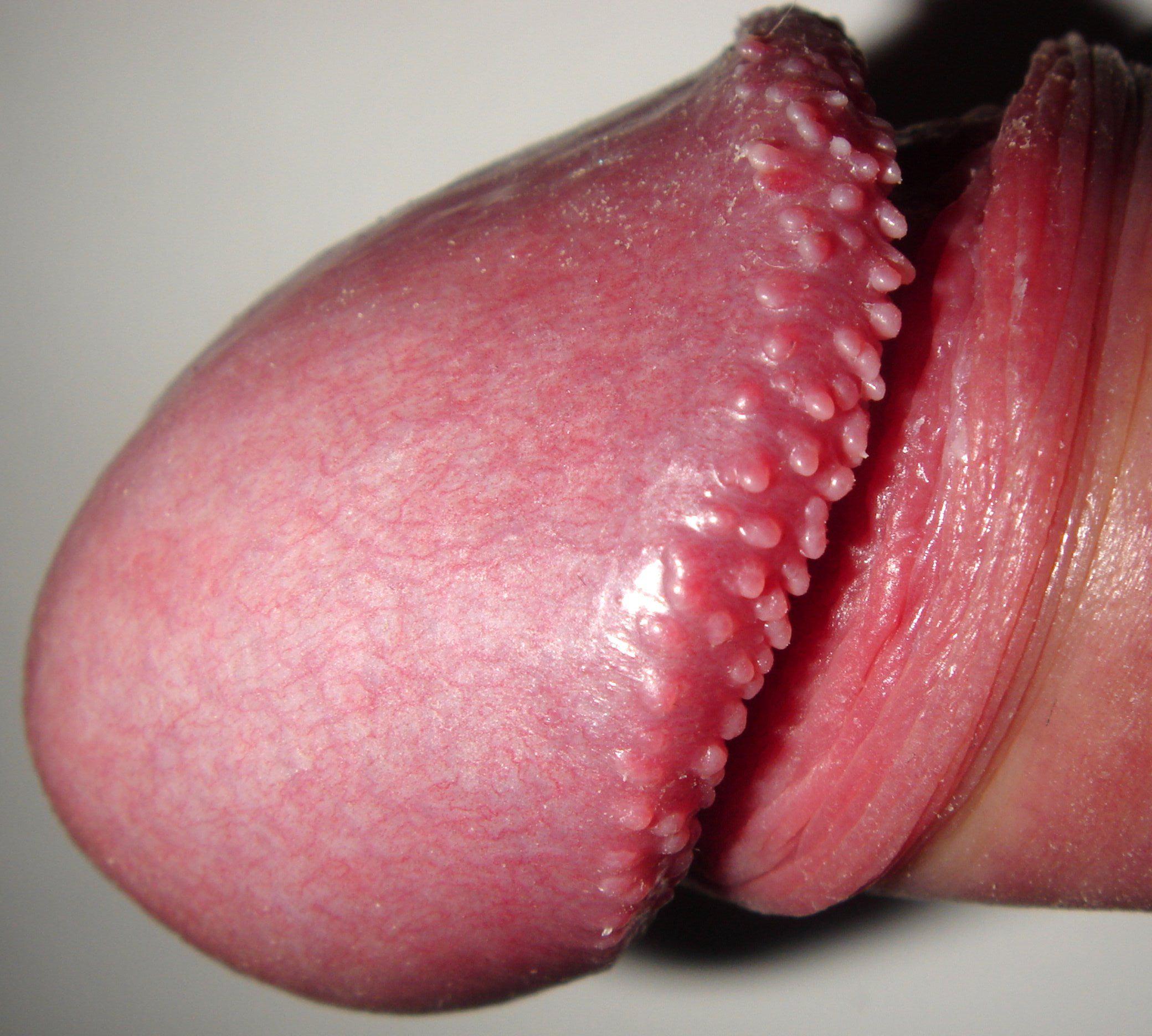vestibular papillomatosis irritation