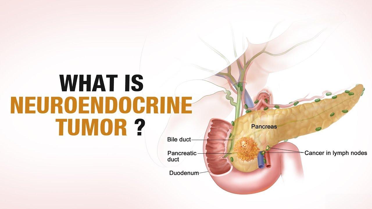 neuroendocrine cancer hindi