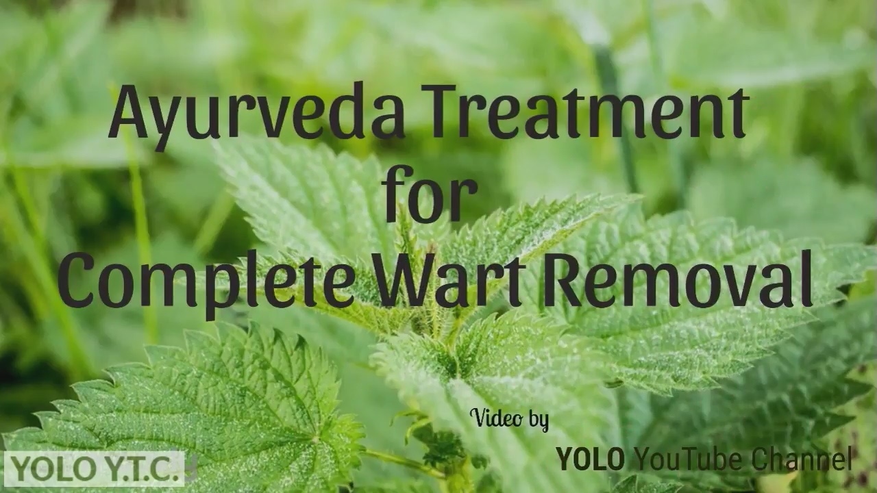 warts unani treatment
