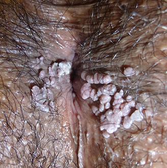 papillomavirus gland traitement