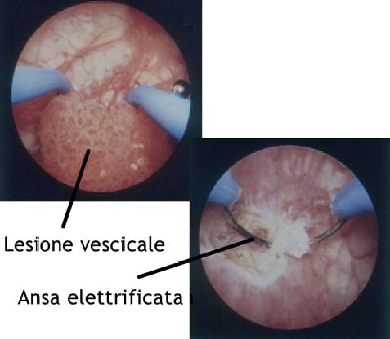 papilloma vescicale benigno)