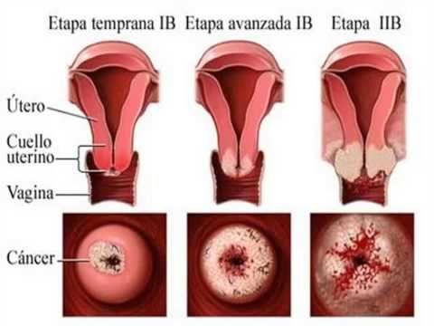 hpv treatment lip