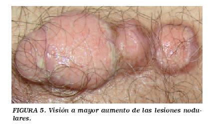 cancer de uretra imagenes)