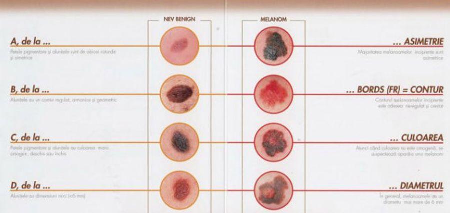Primele semne ale cancerului de piele la copii | Stiri interne | kd-group.ro